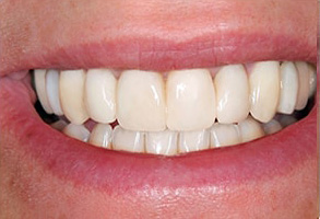 Before and After Invisalign in Santa Clara