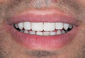 Before and After Veneers in Santa Clara