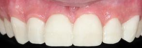 Santa Clara Before and After Dental Implants