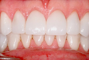 Before and After Dental Fillings 95051