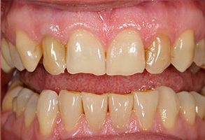 Santa Clara Before and After Teeth Whitening