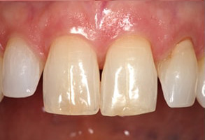 Before and After Dental Bonding in Santa Clara